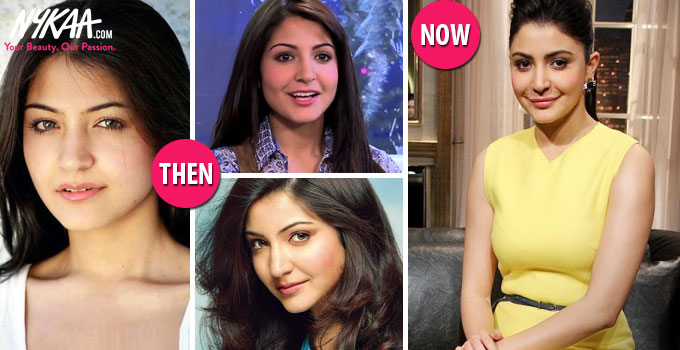 Fifteen Bollywood makeovers that went right (or wrong)| 1