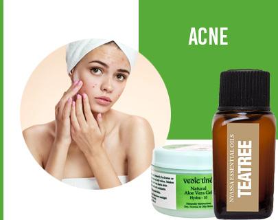8 Natural summertime skin remedies| 4