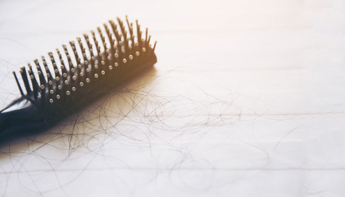 Seven Things You Can Do To Control Hair Fall - 1