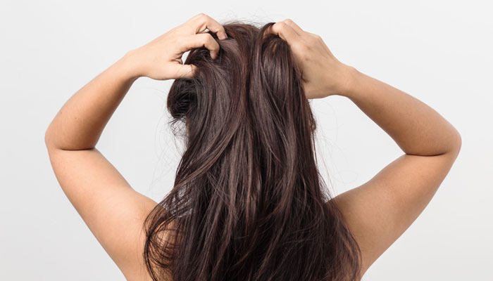 Nix Those Dry Itchy Scalp Woes For Good - 1