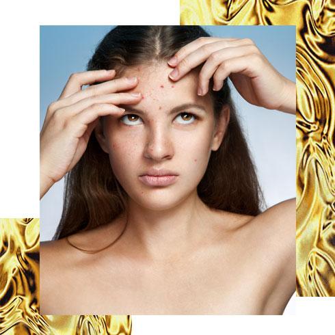 Beauty Makeup Tips – Zit Cure