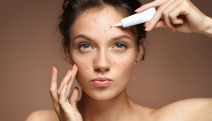 Best Acne Removal What Causes Acne Types Acne Remedies