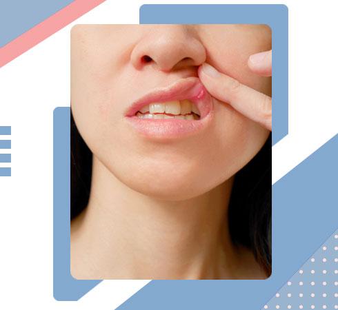 mouthwash benefits – treats sores