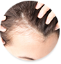 Prevents thinning of hair, stimulates hair growth